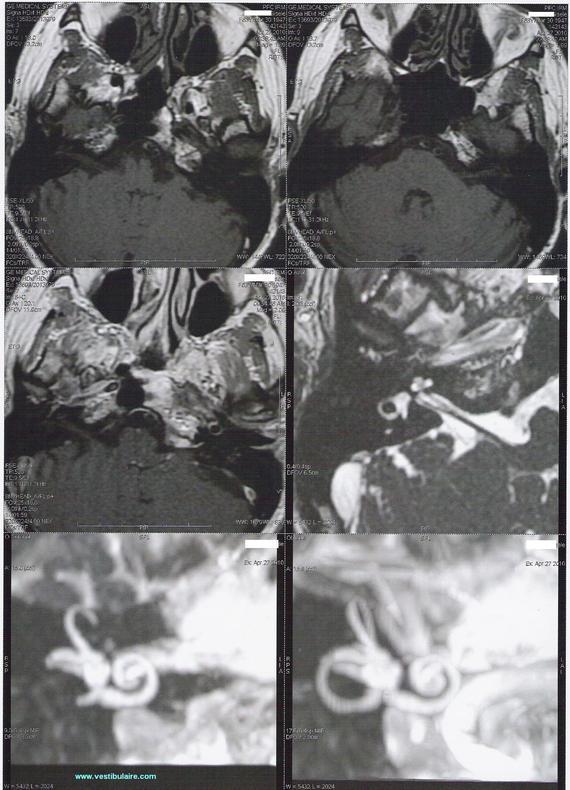 Cupule et Cellules ciliées vestibulaires