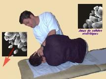 La manoeuvre libératoire dans le VPPB (Semont liberatory maneuver for posterior BPPV)- Rééducation vestibulaire