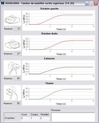 Enregistrement des vitesses de déplacement de la tête et des amplitudes