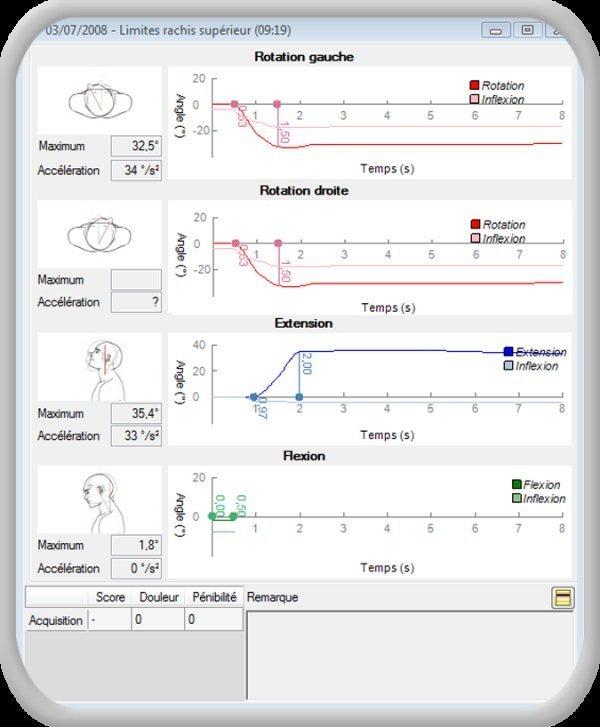Accéléromètrie céphalique