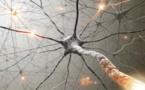 Pathologies neurologiques centrales